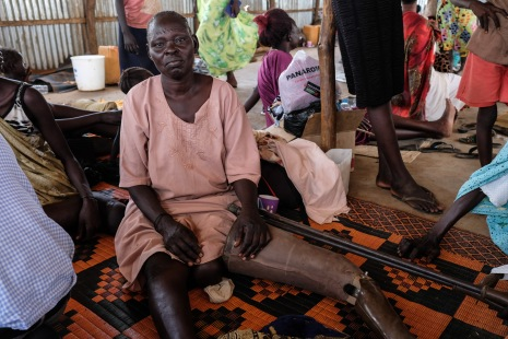 Nyayak Olo Bapit, a Shilluk woman from Malakal, pictured in Juba. She was forced to flee Malakal after a bullet struck her left thigh during fighting there in January 2014.